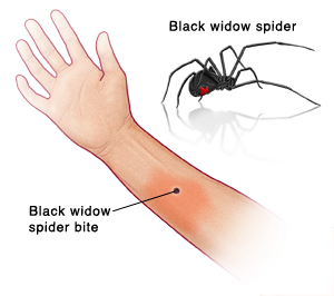 Two images: One of a black widow spider; the other of a black widow spider bite on a human arm showing redness at the site. Labels include: Black widow spider bite, Black widow spider.