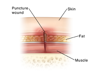 Cross section of skin showing puncture wound.