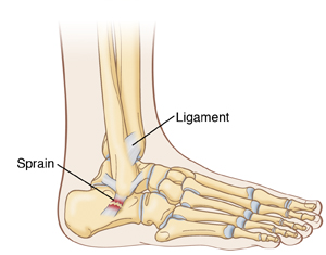 Side view of foot and ankle showing ankle sprain.