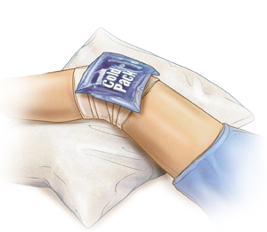 Bandaged knee resting on a pillow with an ice pack.