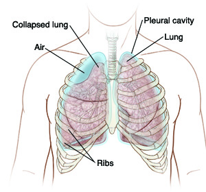 Medical art showing collapsed lung, ribs and pleural cavity.