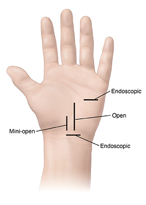 Palm of hand with incision sites for carpal tunnel surgery.