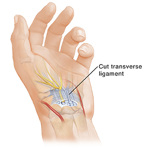 Hand with palm up, showing carpal tunnel anatomy and cut ligament.