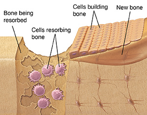 Diagram of normal bone growth showing three different types of bone cells.
