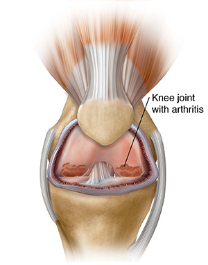 Front view of knee joint showing inflammation and arthritis.