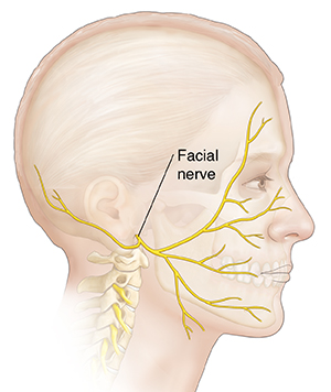 Side view of man's head showing facial nerve.