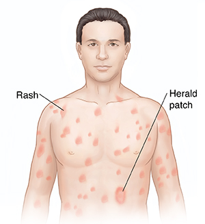 Front view of man's head and chest showing pityriasis rosea.