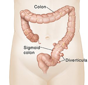 Front view of colon with diverticula pouches in lower part.