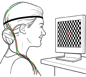 Woman with electrodes on head looking at checkerboard screen during visual evoked potential test.