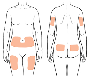 Human outlines showing injection sites on front and back of torso, front of thighs, and back of arms.