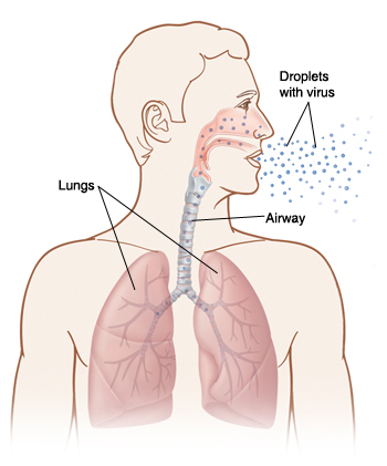 Front view of man's head and chest showing flu droplets being breathed into lungs.