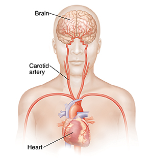 Front view of head and upper body showing carotid arteries and brain.