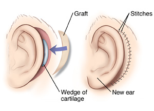 Two images showing the side view of an ear reconstruction. Image one shows a wedge of cartilage inserted behind the ear. Image two shows a skin graft used to cover the insertion site.