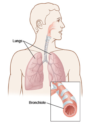 Illustration showing the lungs and a close up view of a bronchiole, a small airways that can get inflamed and restrict the flow of air.