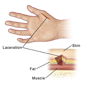 Image of a hand with a laceration and a close-up cross section of the laceration that labels the fat, skin, and muscle.