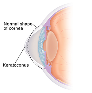 Side view cross section of eye with keratoconus. Dotted line shows normal shape of cornea.