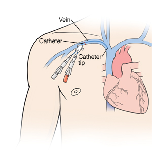 Outline of human figure with catheter inserted into vein under collarbone. Two ports are at end of catheter. Catheter can be seen in vein into heart.