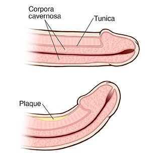 Cross section of normal penis. Cross section of curved penis with Peyronie disease.