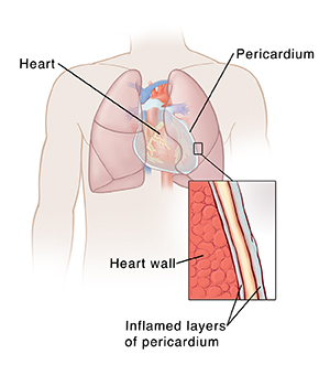 Outline of human chest showing heart and pericardium. Closeup cross section showing two layers of inflamed pericardium with fluid in between them on top of heart wall.