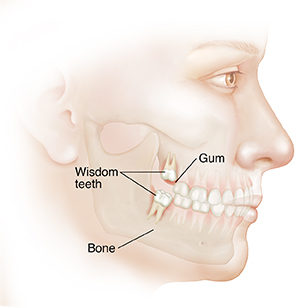 Side view of adult's face showing teeth in upper and lower jaw. Wisdom teeth are through gums with roots anchored in bone.