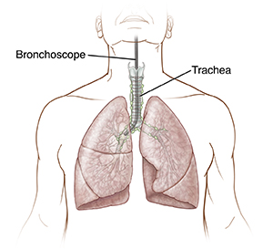 Front view of trachea, bronchi, and lungs with flexible bronchoscope in trachea.