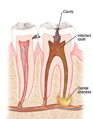 Cross section of two teeth showing cavity, infection, and dental abscess.