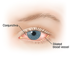 Front view of eye showing conjunctivitis.