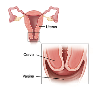 Cross section of uterus with inset showing closeup of cervix.