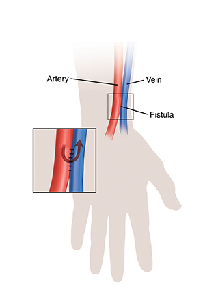 Silhouette of hand and wrist showing fistula for hemodialysis. Inset shows blood flow through fistula.