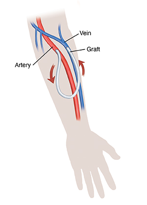 Silhouette of hand and forearm showing graft for hemodialysis. Arrows show blood flow through graft.