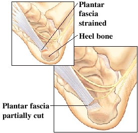 Image of strained plantar fascia